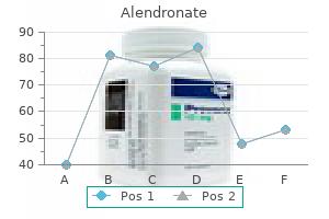 alendronate 35 mg free shipping