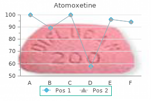 generic atomoxetine 40mg fast delivery