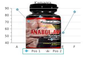 generic kamagra 50mg with mastercard